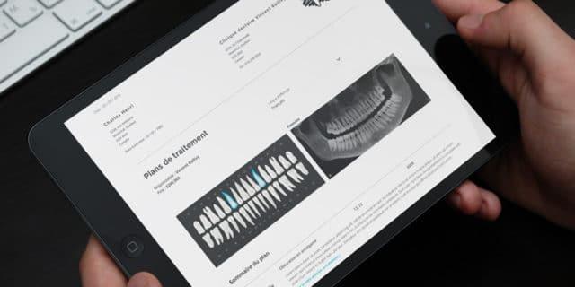Traitements dentaires en vidéo, Est-il facile d'expliquer ?